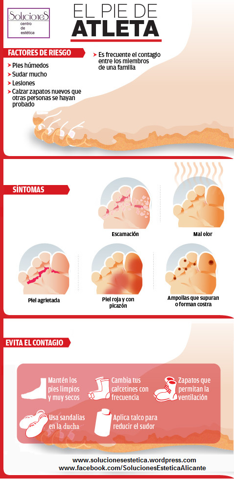pie-de-atleta-infografia
